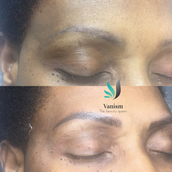 vanism-eyebrow-before-after